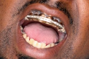 Gold Teeth Seem to be Back in Fashion – Should You Get Yours?